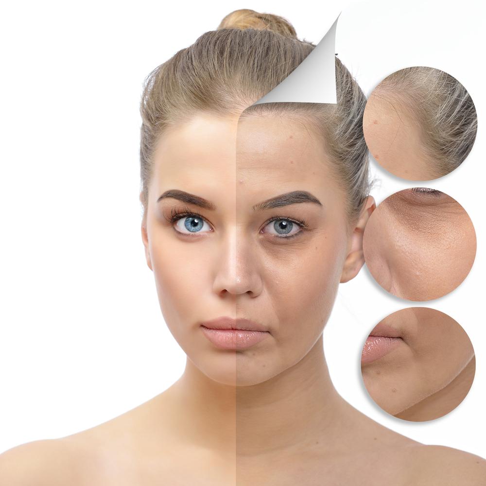Thiếu hụt Collagen gây nên rất nhiều vấn đề cho phái đẹp nếu không được bổ sung kịp thời