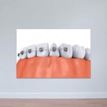 Tranh nha khoa minh họa niềng răng tranh treo tường phòng răng W3363