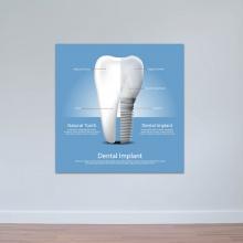 Tranh nha khoa hình minh họa cấu trúc răng sứ tranh treo tường phòng răng W3359