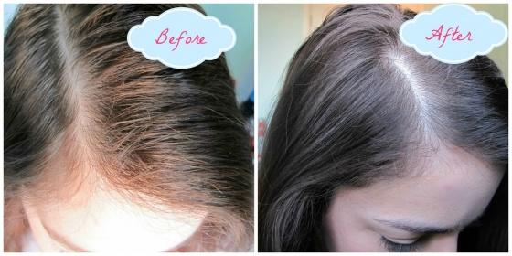 Dầu gội kích thích mọc tóc Hair Growth Leestafford 200ml