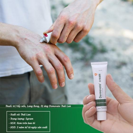 Combo 2 tuýp kem Demovate trị vẩy nến, lang beng, dị ứng - hiệu quả số 1 Thái Lan